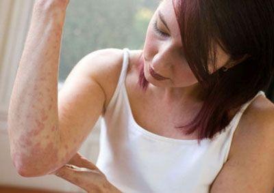 При аллергии на косметику экзема может появляться в любых местах фото