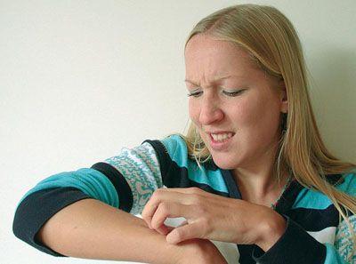 Первый симптом аллергии это зуд