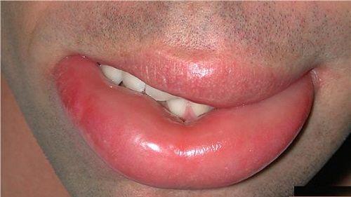 отек нижней губы фото